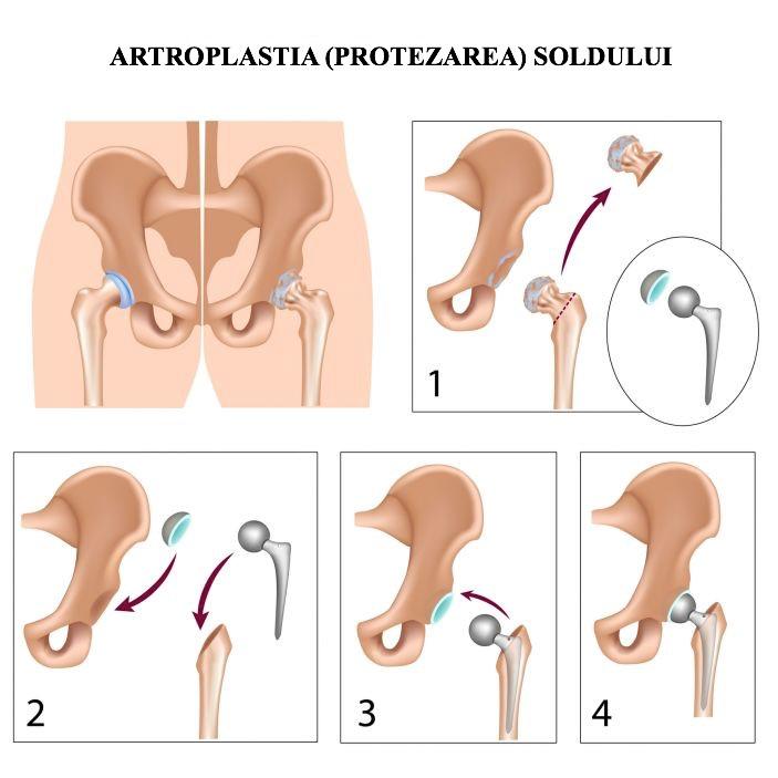 artroza inițială a șoldului)