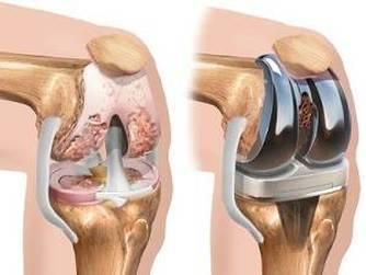 artroza operației de tratament a articulației genunchiului)