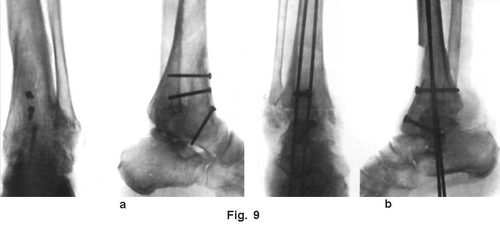 durere cumplită în toate articulațiile tratamentul artrozei balashikha