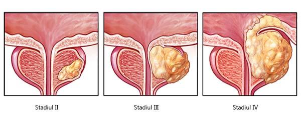 cancer de prostată și dureri articulare)