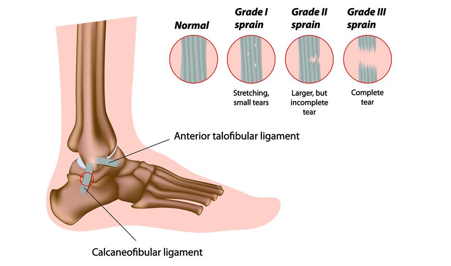 cum se tratează ligamentele gleznei)