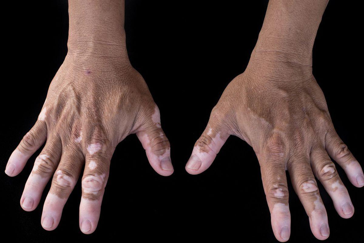 modificări articulare externe în artrita reumatoidă bolile cotului se îmbină