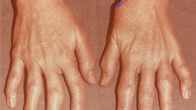 dureri articulare la baza degetului mare articulația șoldului doare și este fierbinte