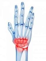 Artrita articulației încheieturii mâinii stângi - Infecții articulare rănite