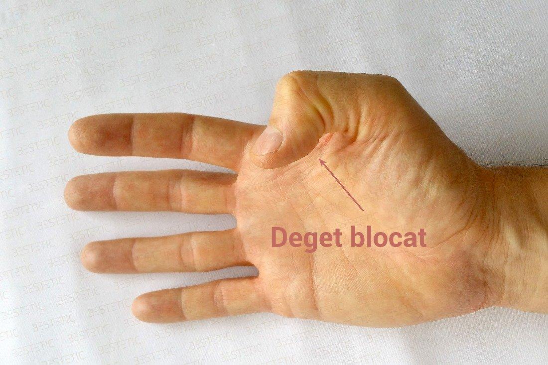 degetul mare în articulație)