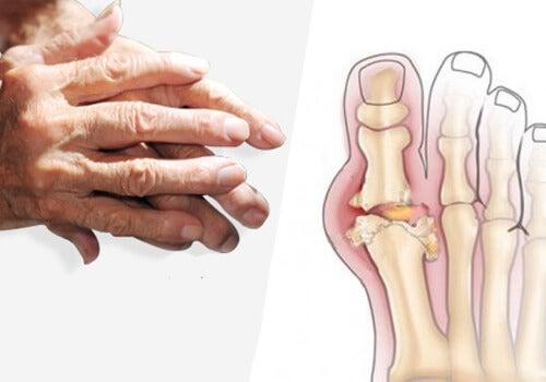 tratarea artritei cu sodă de coacere)