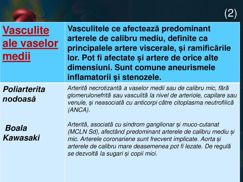 vasculită asociată cu boala țesutului conjunctiv)
