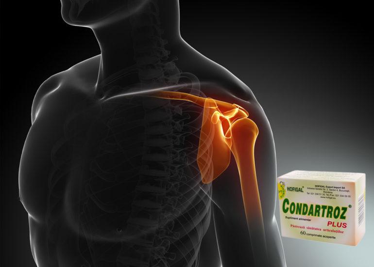 artroza articulației umărului la sportivi)