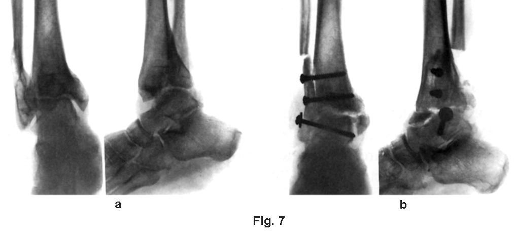 Tratament tradițional pentru artroză