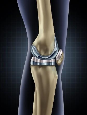 lectură artroza post-traumatică a articulației genunchiului)
