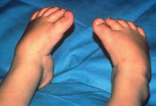 tratamentul articulațiilor piciorului de carbon)