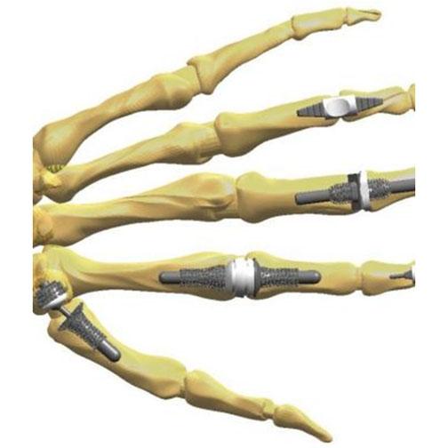 pregătire complexă pentru articulații)