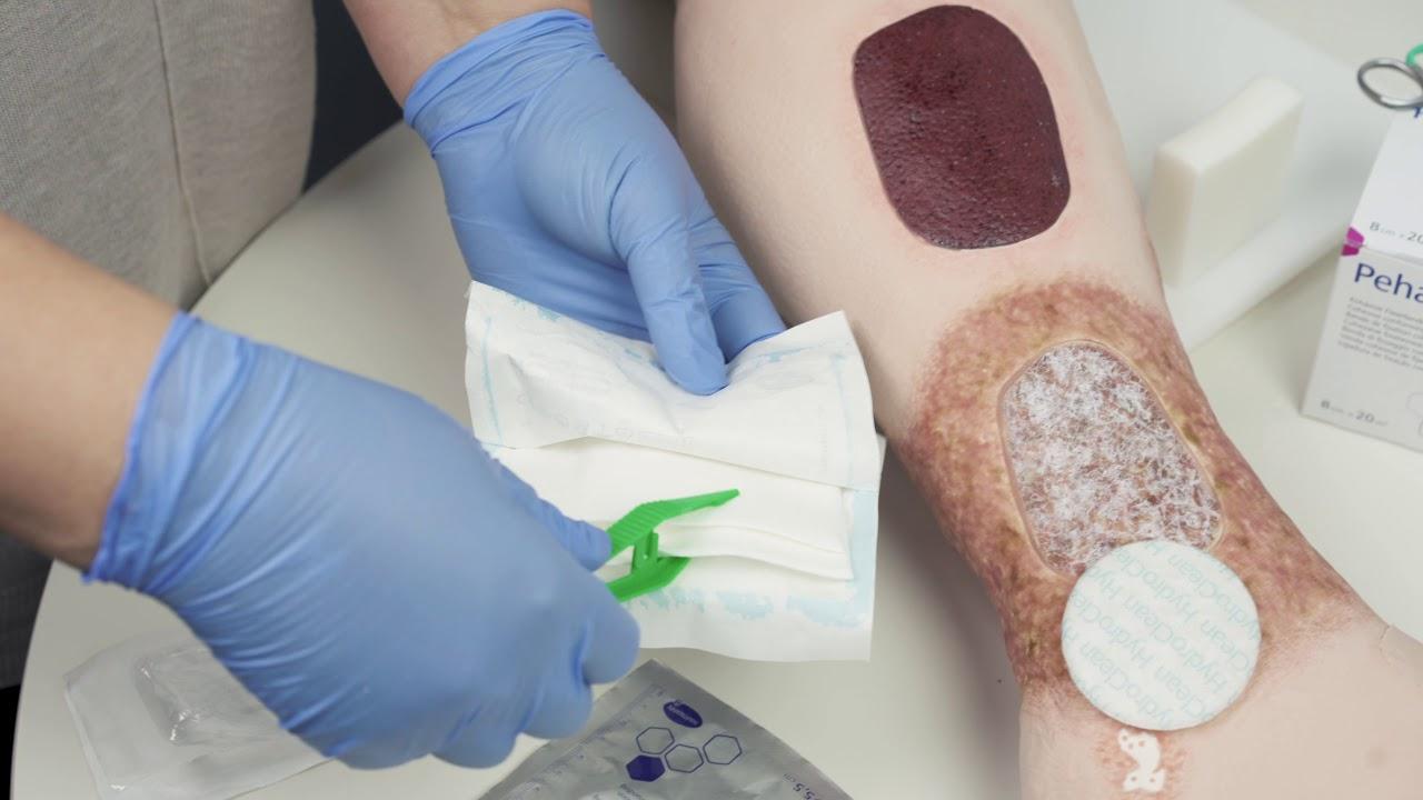 tratamentul artrozei cu învelișuri