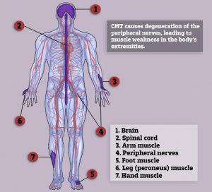 hidrocortizon în tratamentul artrozei remediu articular artrocel