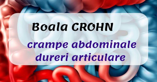 Boala CROHN: cauza pentru durere abdominală - Servus Expert