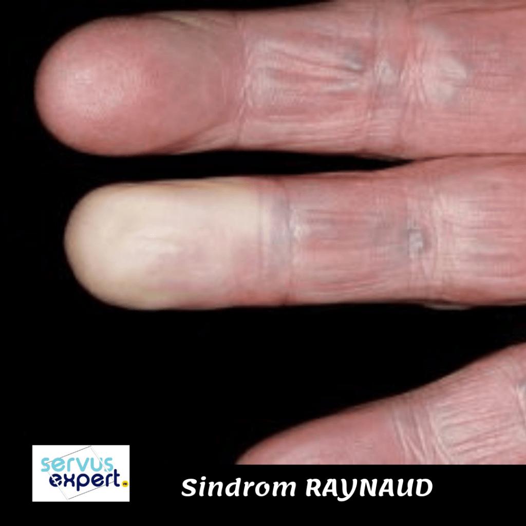 Boala și articulațiile lui Raynaud durere severă cu artrită a genunchiului