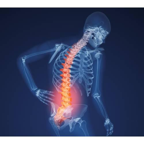boli ale articulațiilor și oaselor unei persoane)
