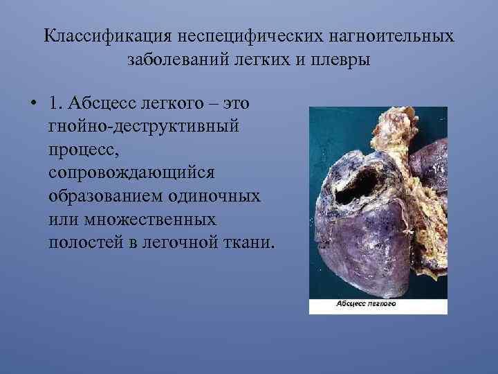 Boala mixtă de țesut conjunctiv - centru-respiro.ro