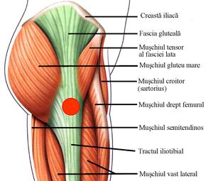 boli ale mușchilor și tendoanelor simptomelor șoldului)