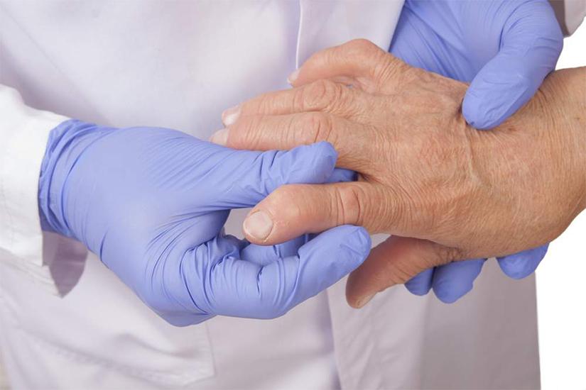 artrita reumatoidă a falangei degetului)