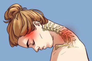dureri de gât și umeri medicamente pentru osteochondroza gâtului