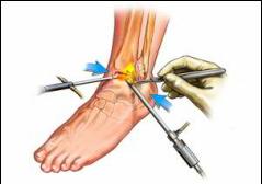 Cum să anesteziați artroza articulației gleznei