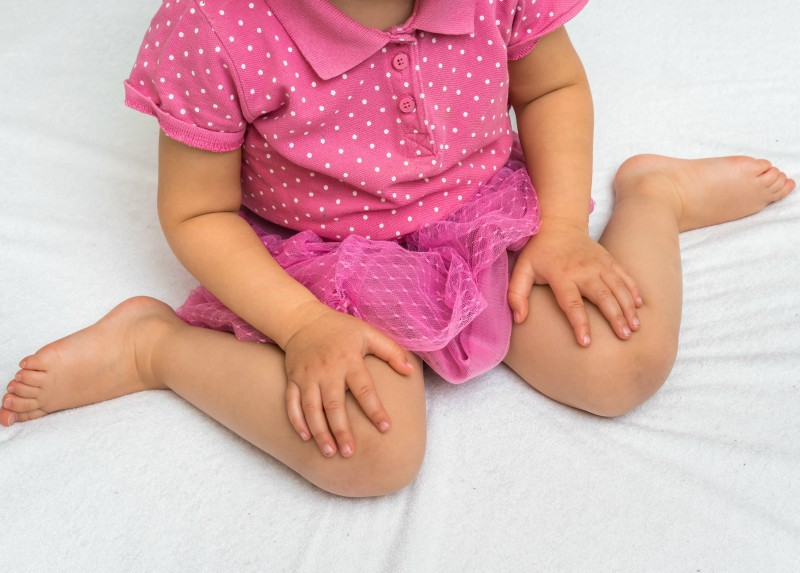 luxație congenitală a șoldului în tratamentul adulților