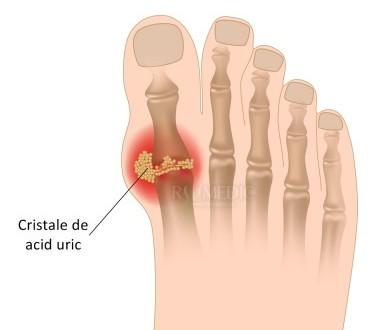 care tratează artrita gutoasă