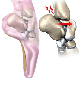 cauza durerii în articulația gleznei)