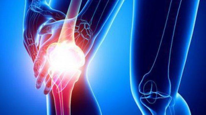 unguente pentru oase și articulații capsulă pentru tratamentul artrozei