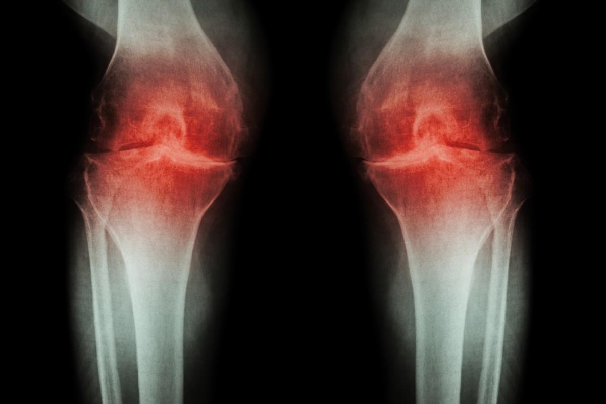 artroza articulațiilor ambelor picioare