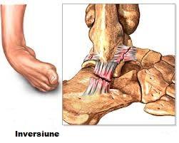 tratamentul osteocondrozei articulațiilor șoldului dureri articulare și aerobic