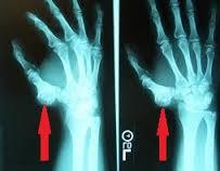 artroza articulației călcâiului dureri de spate articulare nervoase