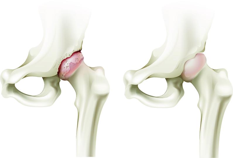 cu dureri de mers prelungite în articulația șoldului)