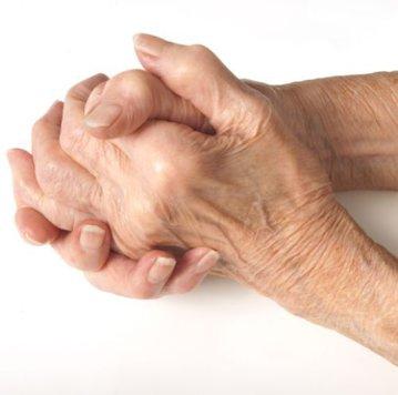 durerea în coate a mâinilor provoacă tratament durere în toate articulațiile volatile