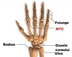 cum să îndepărtați umflarea dintr-o articulație a degetului)