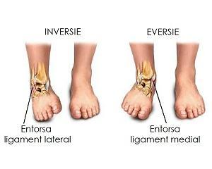 Entorsa Genunchi - Ortopedie ArcaLife