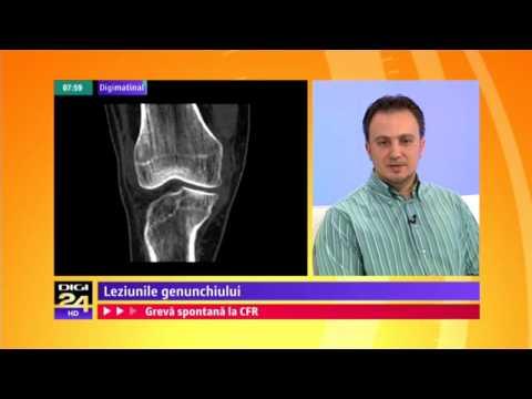cum se tratează artroza maxilară)