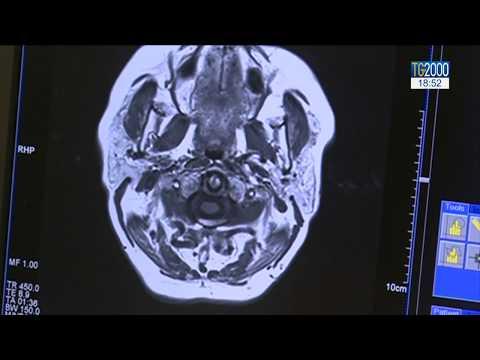 cum se tratează osteoartroza deformantă a articulației gleznei)