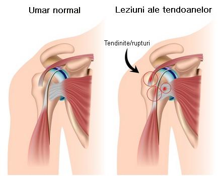 dă durere articulației umărului)