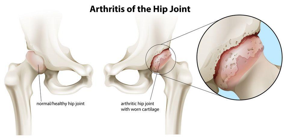 artroza a doua etapă a articulației șoldului)
