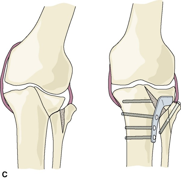 Consolidarea vicioasa si pseudartroza fracturii de tibie proximala