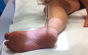artrita articulațiilor intertarsale