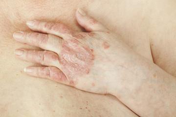 care tratează artrita psoriazică enumerați simptomele leziunilor articulare închise