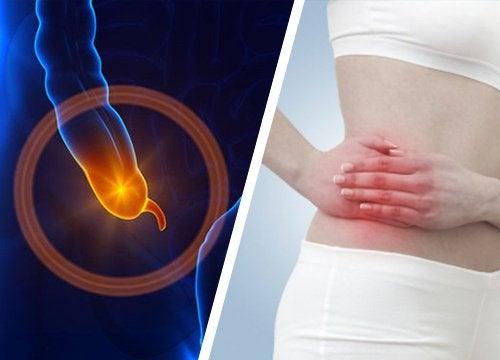 dureri articulare cu boala intestinului)
