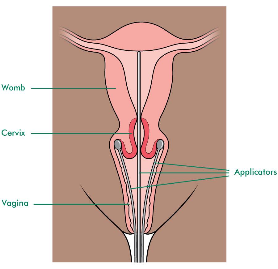 lipomul articulației genunchiului cum să tratezi