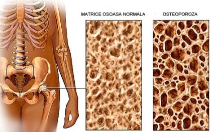 Tratamentul osteoporozei de gradul 1