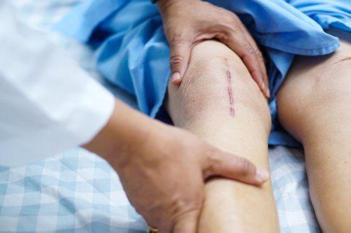 recuperare după rezecția genunchiului)