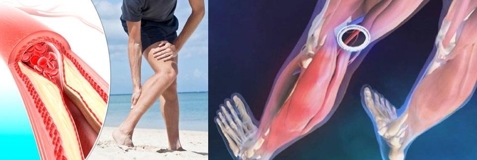 dureri de picioare la nivelul articulației inferioare