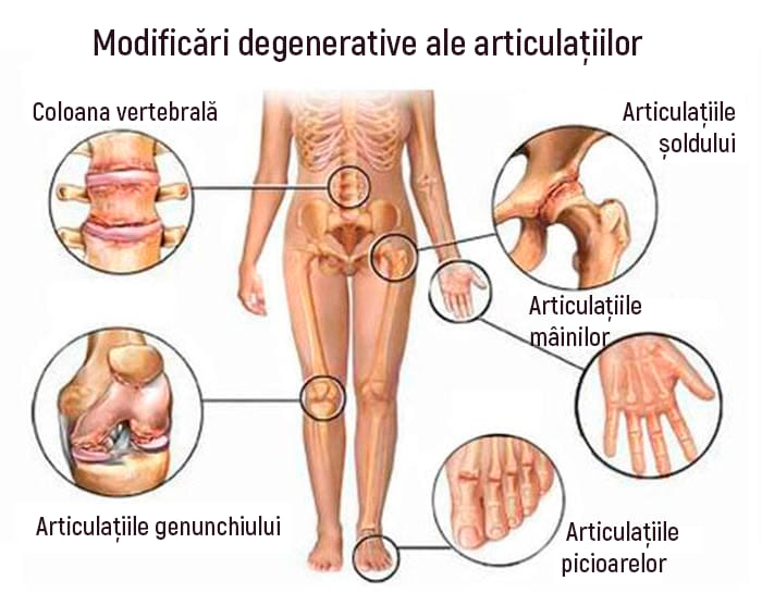 Artroza articulației acromio-claviculară